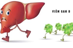 Tìm hiểu bệnh viêm gan B và xét nghiệm viêm gan B