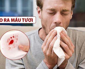 Triệu chứng lao phổi và những điều cần biết về bệnh lý