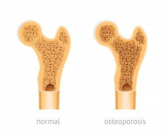 Nguyên nhân, triệu chứng, chẩn đoán và điều trị Loãng xương