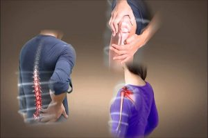 10 căn bệnh về xương phổ biến nhất